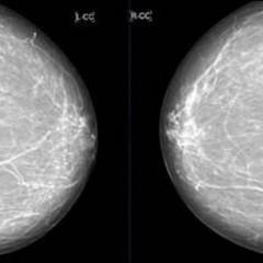 Рак молочной железы - первые признаки, симптомы и фото