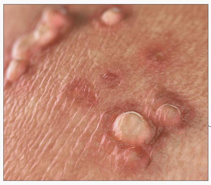 Венерические заболевания цистит сыпь на пенисе
