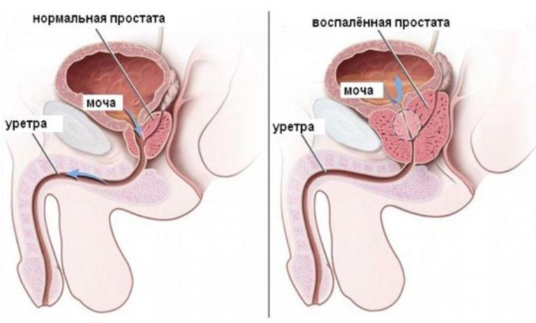 Ureaplasma spp и оральный секс